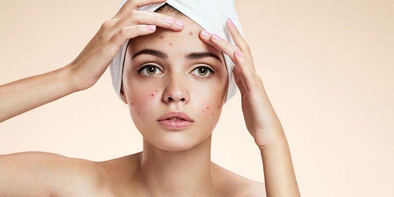 Cách trị mụn sau sinh hiệu quả giúp mẹ lấy lại làn da như ý muốn